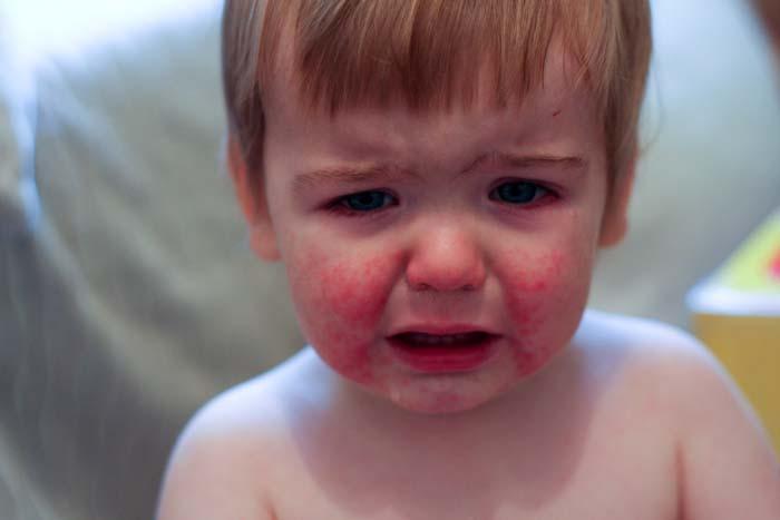 بیماری پنجم یا اریتما اینفکتیوزوم