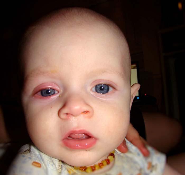 التهاب چشمی