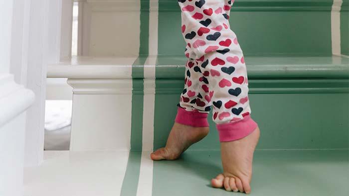 کشیدگی تاندون آشیل ساق پا