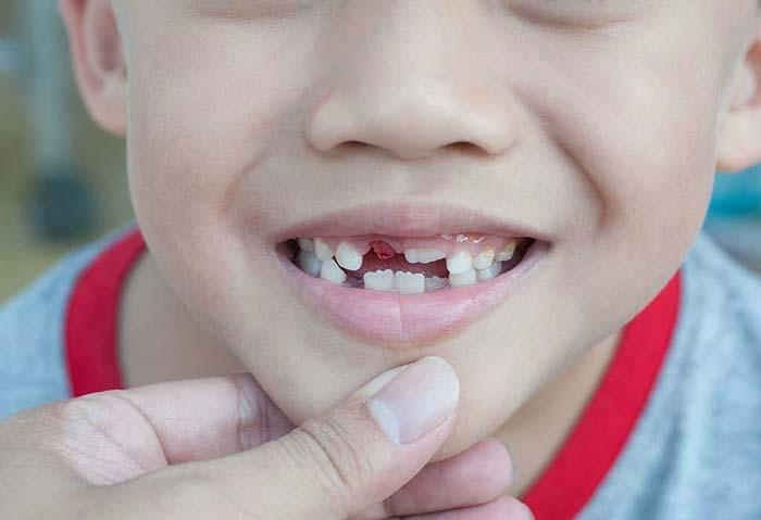 از دست دادن زودهنگام دندان