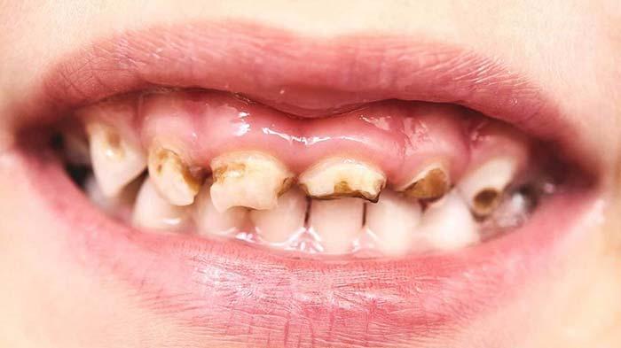 پوسیدگی دندان ناشی از شیشه شیر