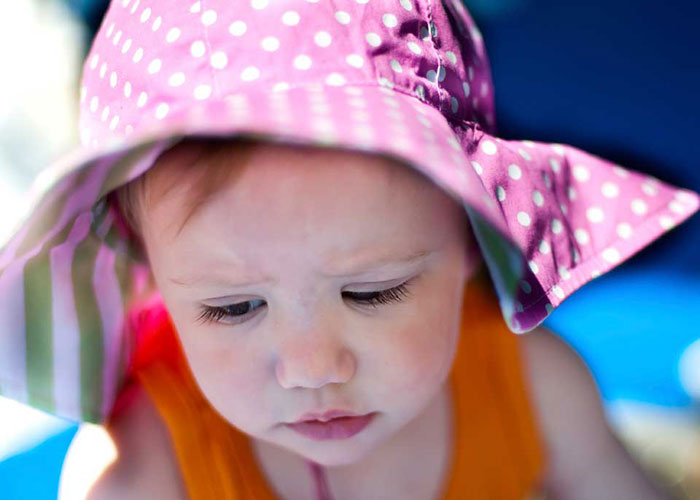 تشخیص آفتاب سوختگی در کودکان