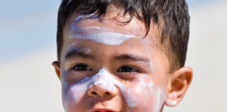 آفتاب سوختگی در نوزادان و کودکان