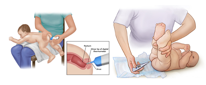 اندازه گیری تب کودک از راه مقعد