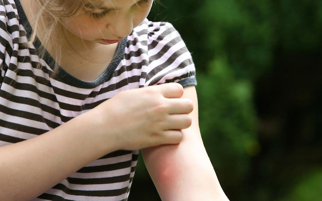 زرد زخم در کودکان