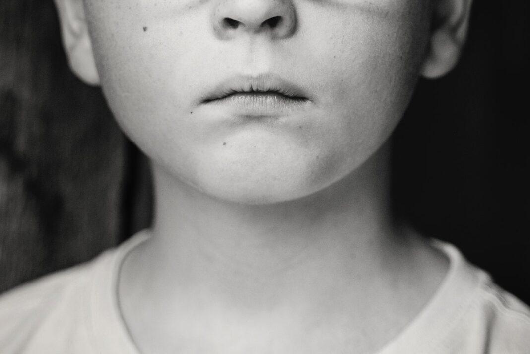 حالات چهره در کودکان