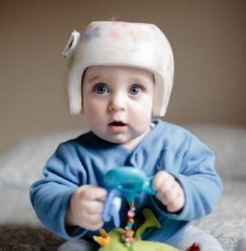 کلاه درمانی برای نوزادان